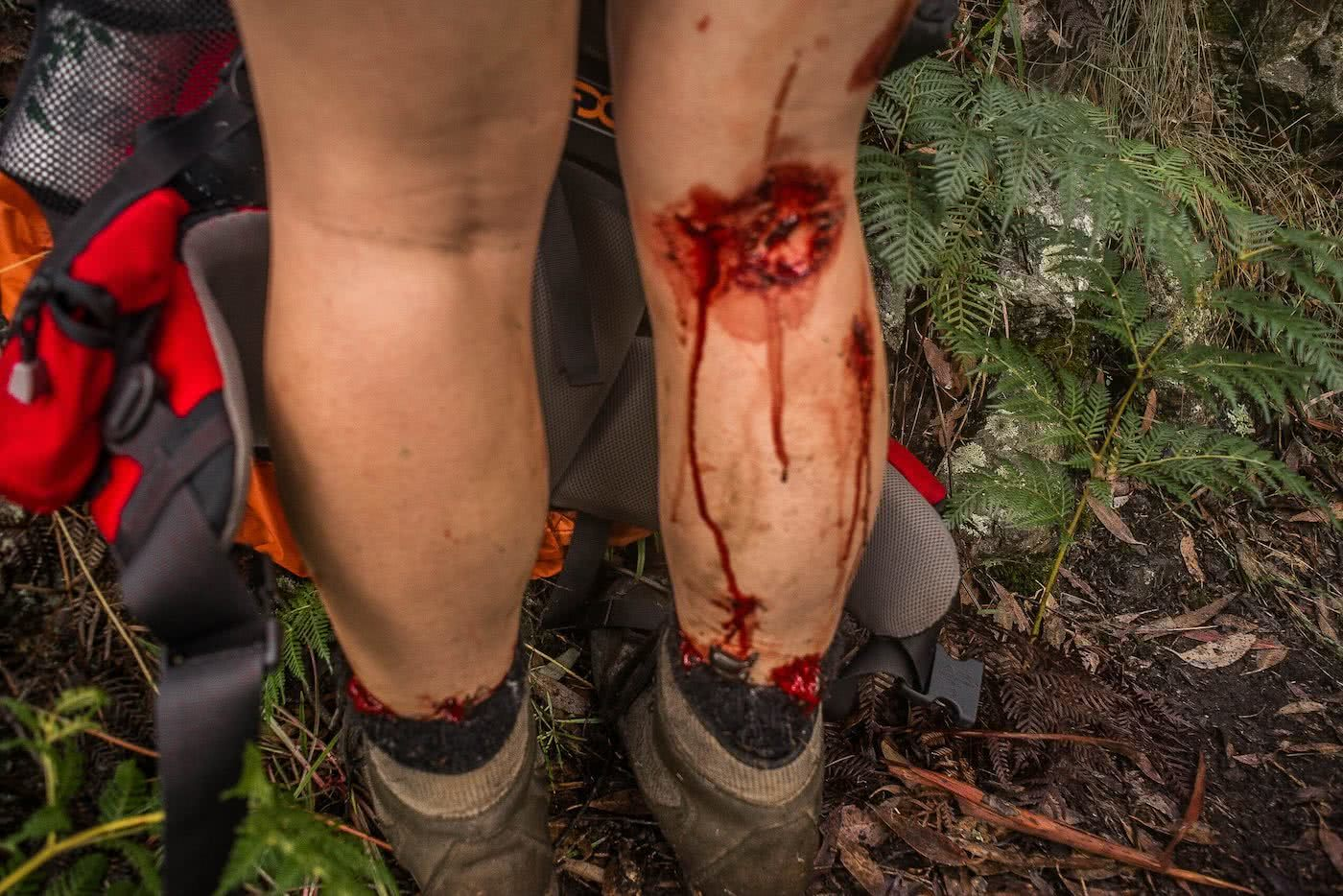 Knowing When To Call It by Lachie Thomas hiking, blood and leeches